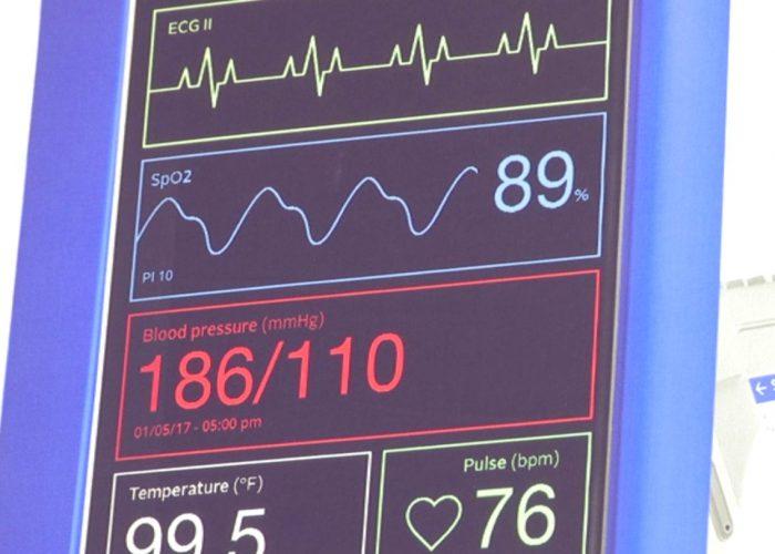 Maladies cardiovasculaires et santé connectée